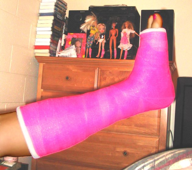 Doll Leg Cast http://www.sshs57.com/photos/041212AnkleBreak.htm